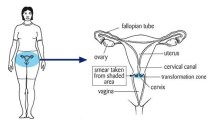 Diagram of the cervix and its location on inside a woman