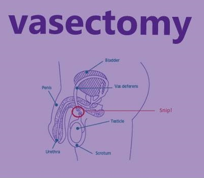 A vasectomy costs $385 at Family Planning
